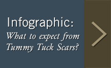 What to expect from Tummy Tuck Scars?