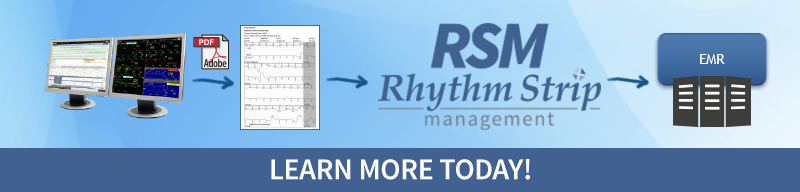 Learn More About Epiphany's Rhythm Strip Management