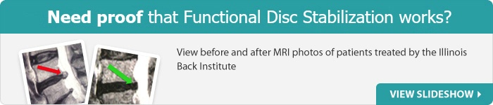 Before and after mri cta