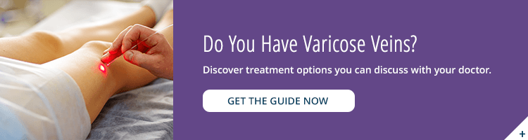 Varicose Veins Treatment Options guide