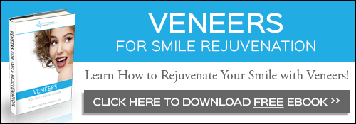 Veneers for Smile Rejuvenation FREE eBook Download
