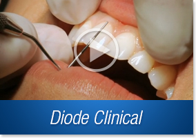 Diode Laser Clinical Videos