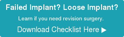 Failed Implant? Loose Implant? Learn if you need revision surgery.  Download Checklist Here ▶︎