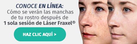 Conoce en línea cómo se verán las manchas de tu rostro después de 1 sola sesión de Láser Fraxel