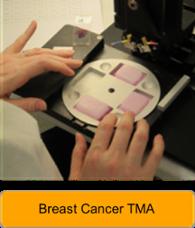 tissue microarray