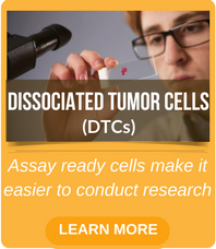 tumor derived cells, assay ready cells