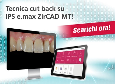 Tecnica cut back su IPS e.max ZirCAD MT!