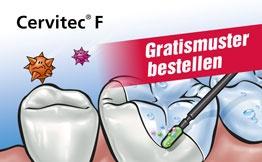 Gratismuster Cervitec F
