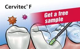 Free sample Cervitec F