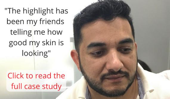Muhammad face testimonial