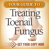 Free-Guide-How- to treat toenail fungus