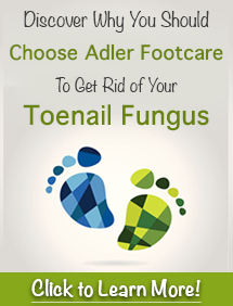 Why choose adler footcare for toenail fungus