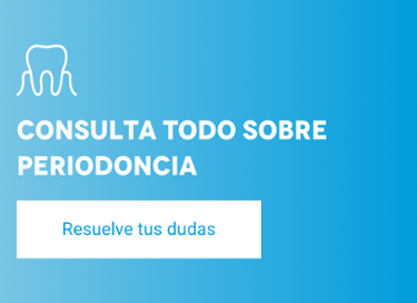 Resuelve tus dudas sobre periodoncia