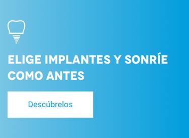 Encuentra tu implante dental
