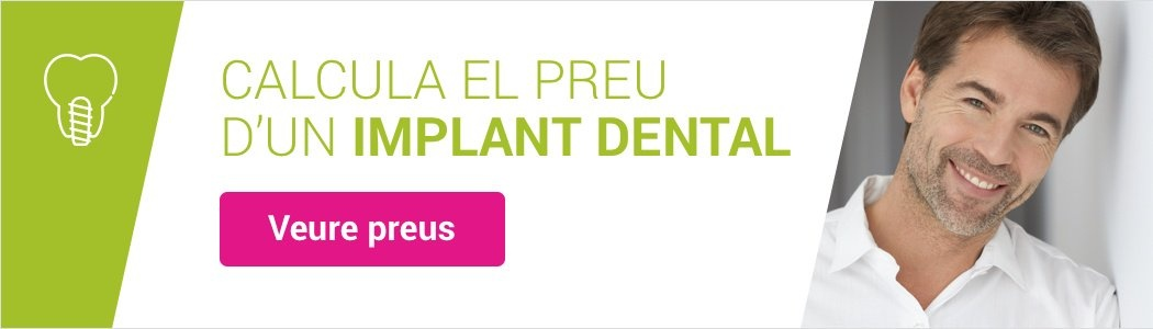 Comparadora preus per a implants dentals