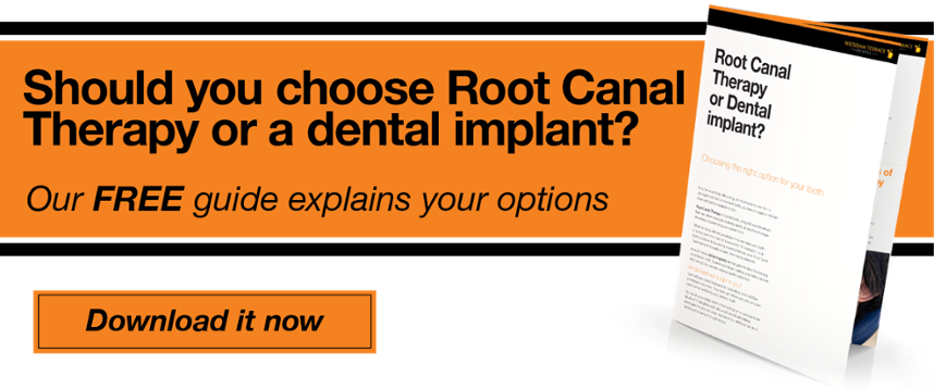Should you choose Root Canal Therapy or a dental implant?
