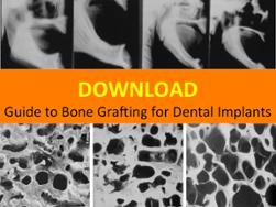 Download Guide to Bone Grafting for Dental Implants