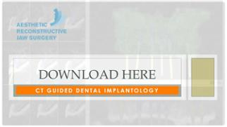 CT guided dental implant