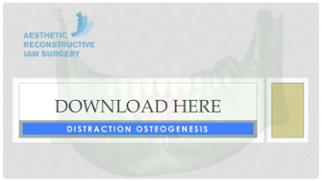 Distraction Osteogenesis