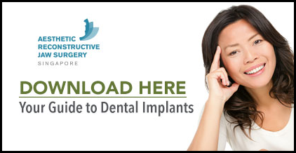 Download  Your Guide to Dental Implants ➤
