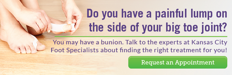 Do you have a bunion?