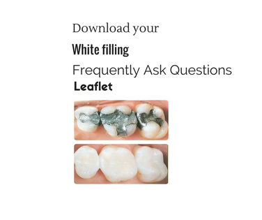 white dental fillings