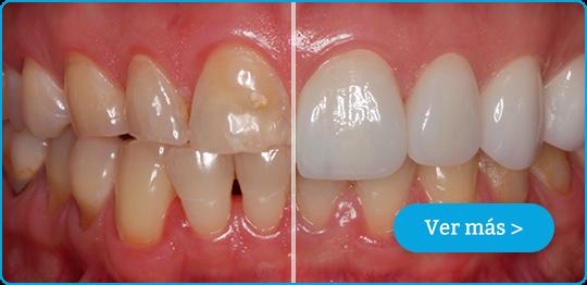 diseño de sonrisa - antes y después blog