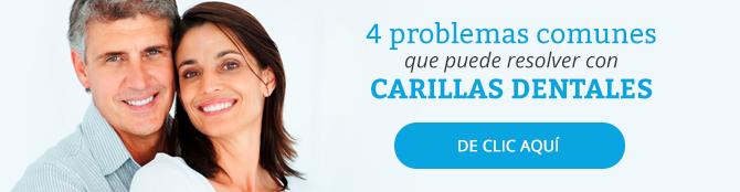 4 problemas que puede solucionar con carillas dentales