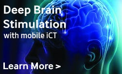 View Deep Brain Stimulation with iCT