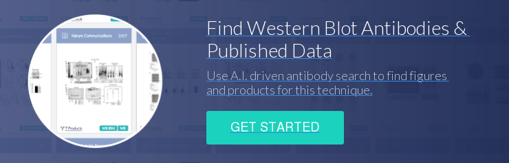 Find Western Blot Antibodies &  Published Data Use A.I. driven antibody search to find figures  and products for this technique. Get Started