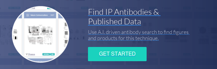 Find IP Antibodies &  Published Data Use A.I. driven antibody search to find figures  and products for this technique. Get Started