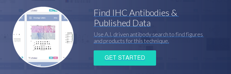 Find IHC Antibodies &  Published Data Use A.I. driven antibody search to find figures  and products for this technique. Get Started