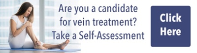 Varicose Vein Self Assessment Survey