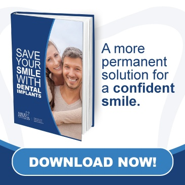 Saving your smile with dental implants free ebook