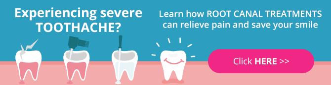 root canal treatments - dentalia