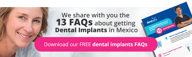 13 important facts dental implants in Mexico - dentalia