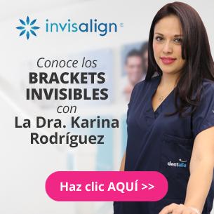 Brackets transparentes - dentalia México