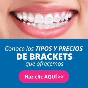 infografia de brackets, consultorios dentales
