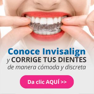 dentalia México - Infografía Invisalign