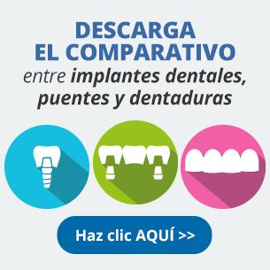 Descarga el comparativo entre implantes dentales, puentes y dentaduras —Da clic aquí---