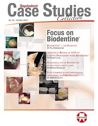 Septodont Case Studies Collection - CSC 3