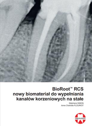 BioRoot RCS nowy biomateriał do wypełniania kanałów korzeniowych na stałe