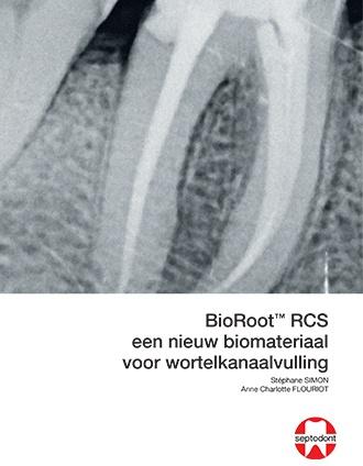 BioRoot RCS een niew biomateriaal voor wortelkanaalvulling