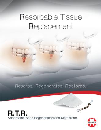 RTR Brochure USA