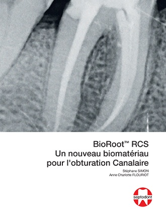 BioRoot RCS un nouveau biomateriau pour l'obturation canalaire