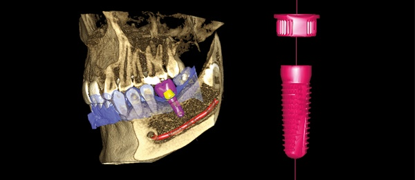 Planmeca complete dental implant workflow