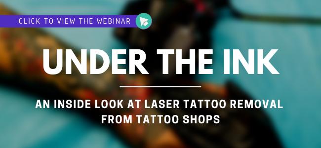 laser tattoo removal webinar