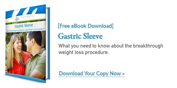 Gastric Sleeve Procedure | Free eBook Download