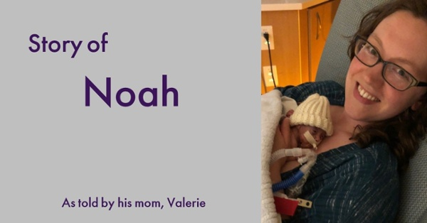 This is a story about Baby Noah - he was born at just 23 weeks 3 days and weighed only 1 lb 4 oz before he benefited from Prolacta Bioscience and an exclusive human milk diet.