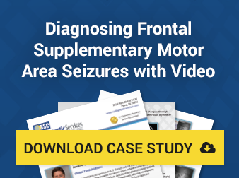 frontal-supplementary-motor-area-seizures